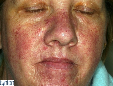 Red Vein Treatments